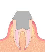 根管治療の流れ5